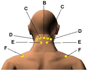 Acupuncture for Neck and Shoulder Pain: Is It Any Better Than Conventional Treatment?